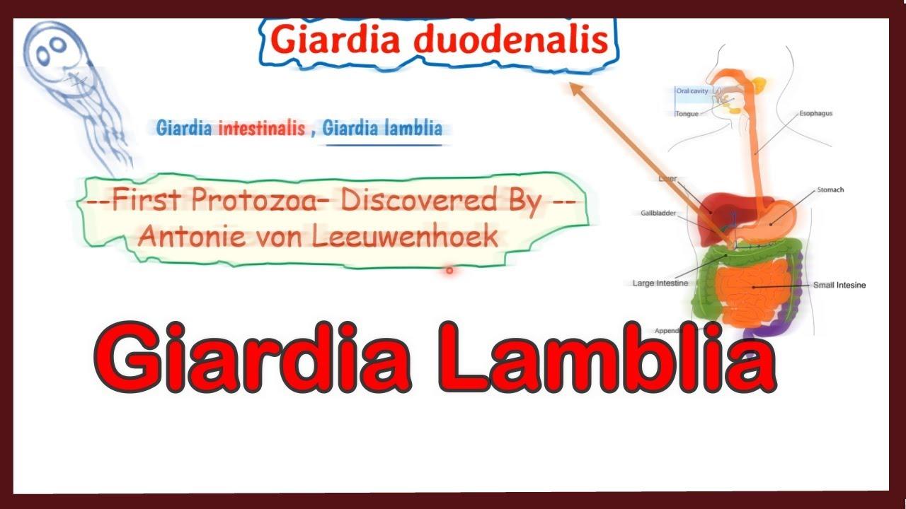 Parazitozele intestinale: giardioza si ascaridioza | anvelope-janteauto.ro