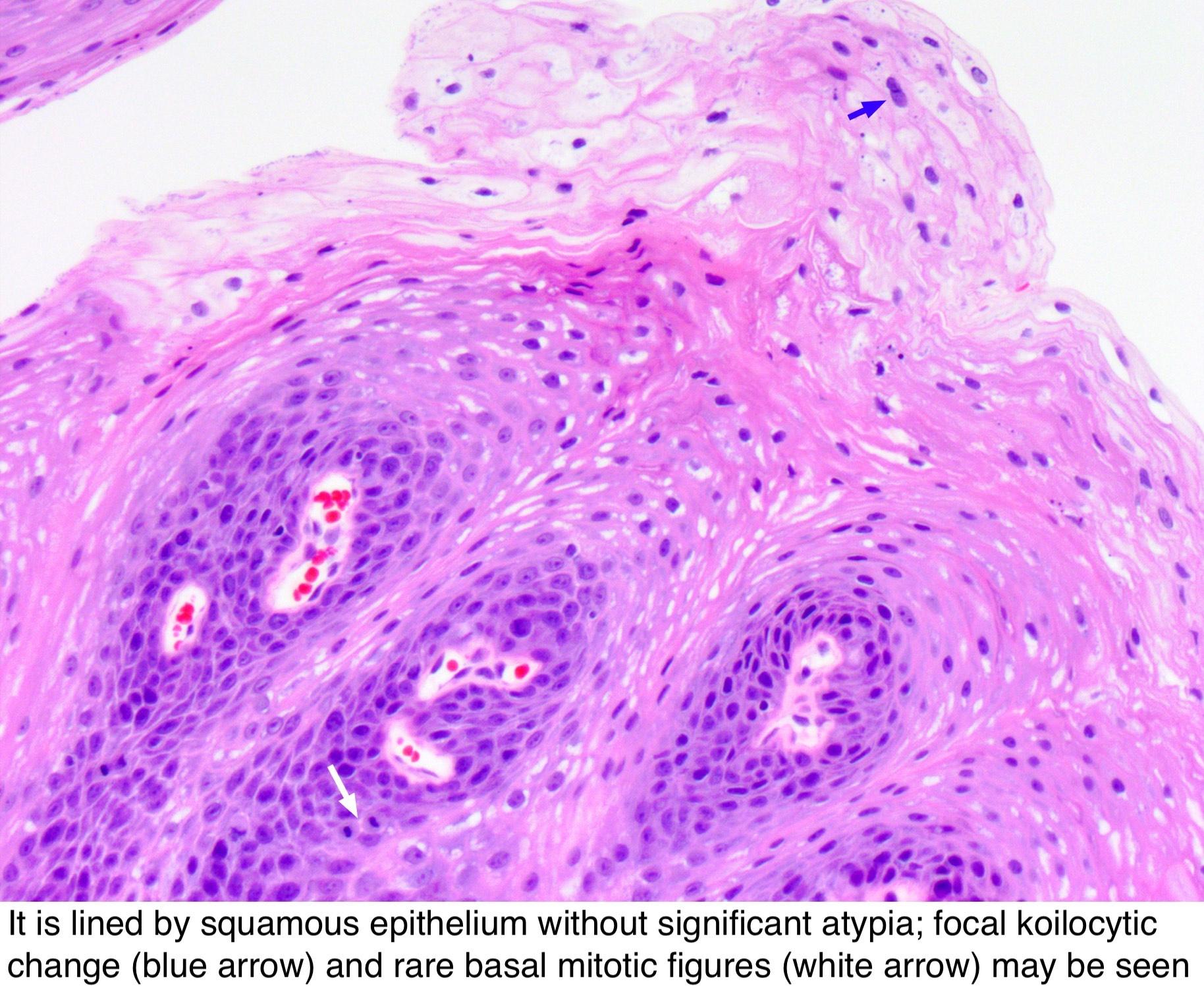 squamous papilloma of tongue pathology outlines)