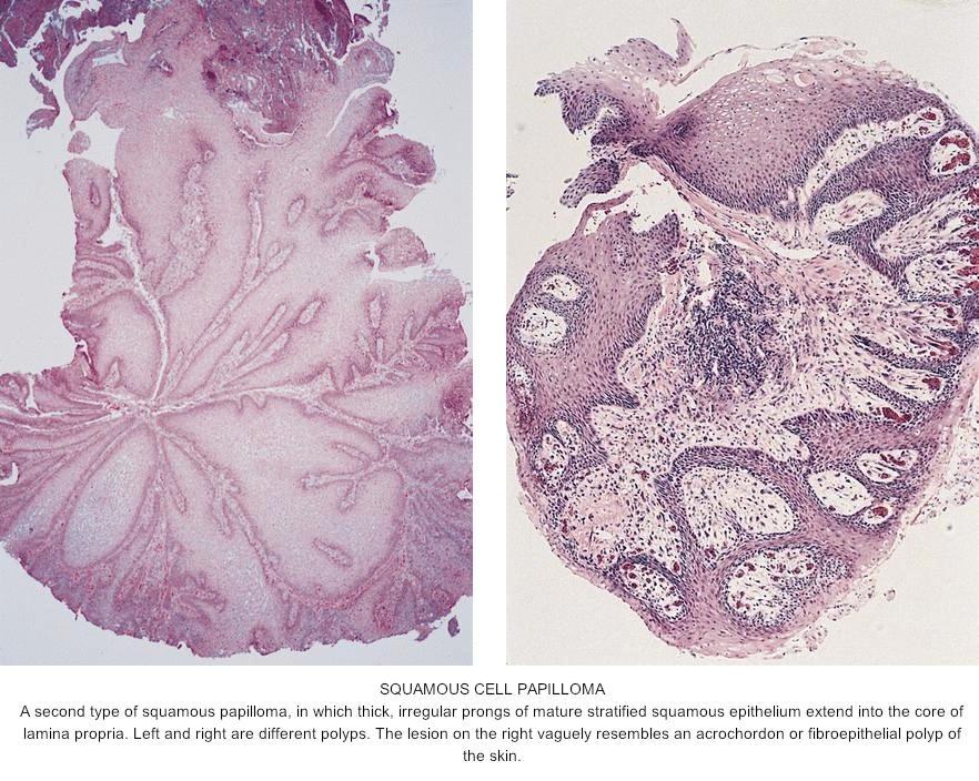 squamous papilloma esophagus pathology outlines)