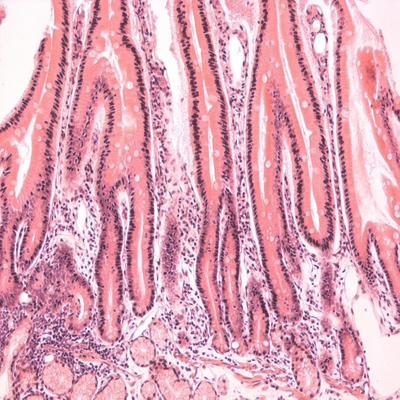 Giardiasis behandlung mensch - Wurmer Olga Ivanovna Eliseeva