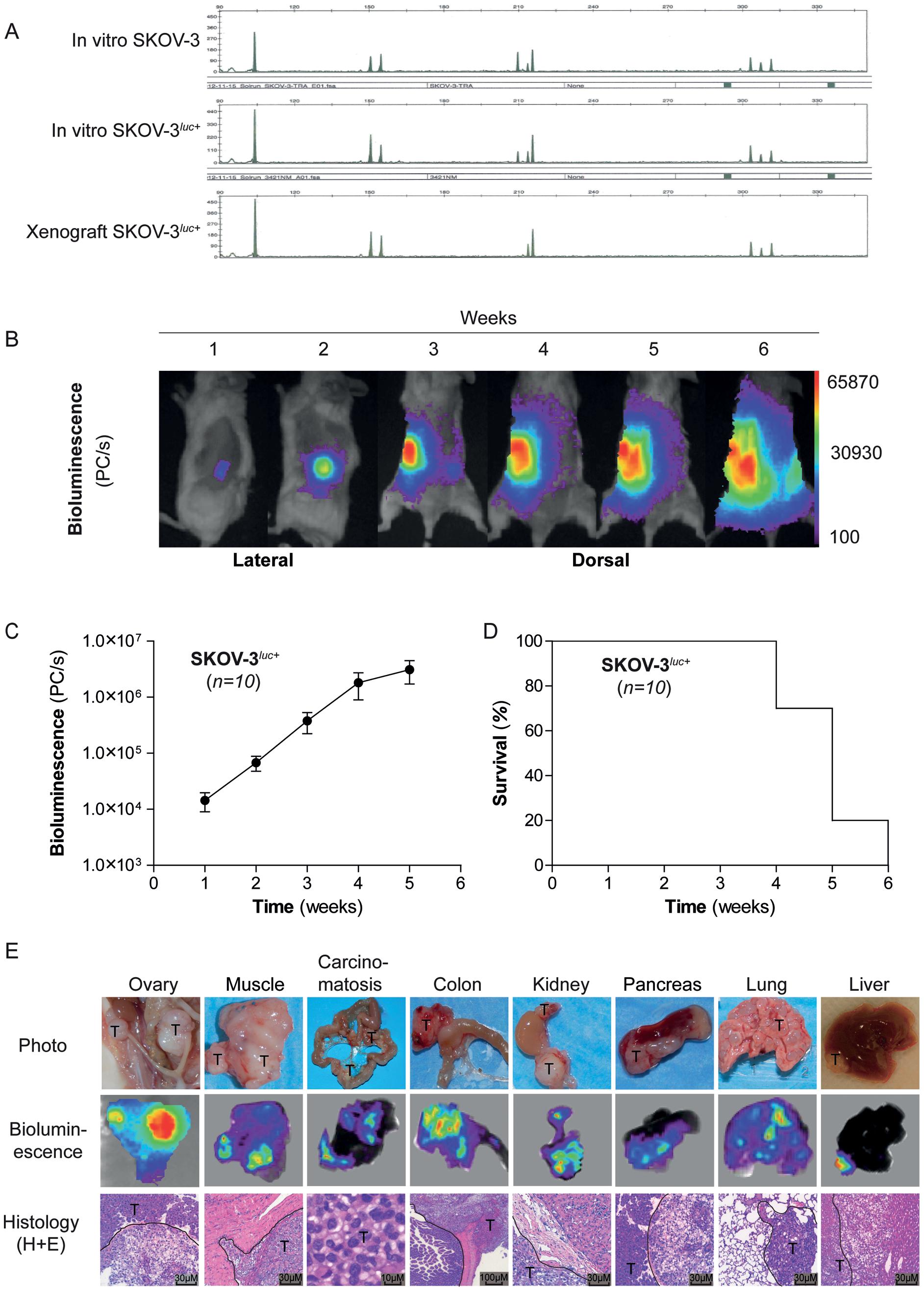 ovarian cancer xenograft model)
