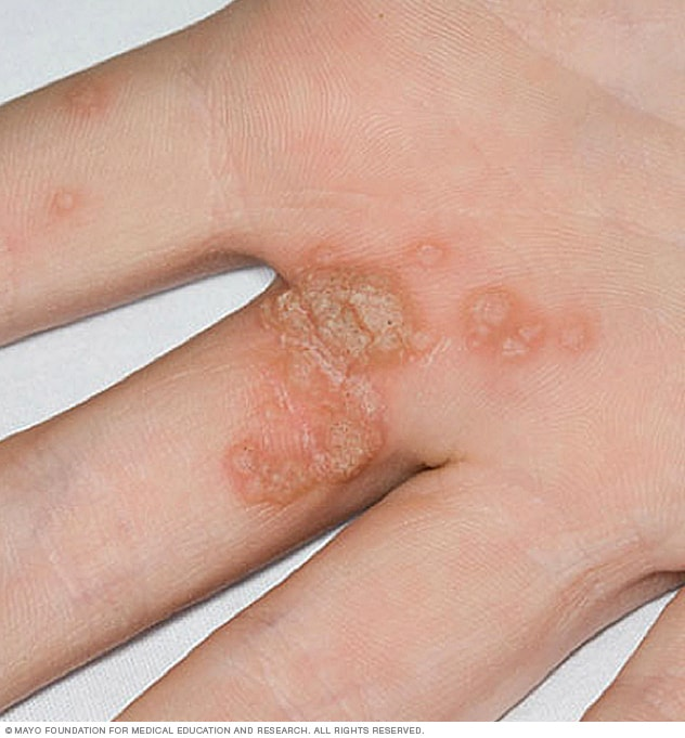 hpv virus common warts