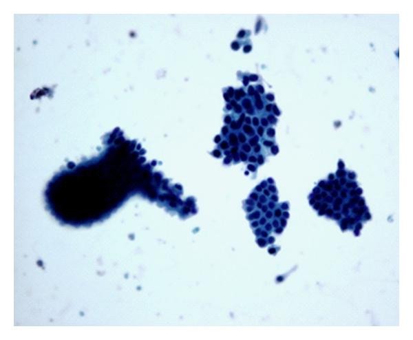 intraductal papilloma cytology
