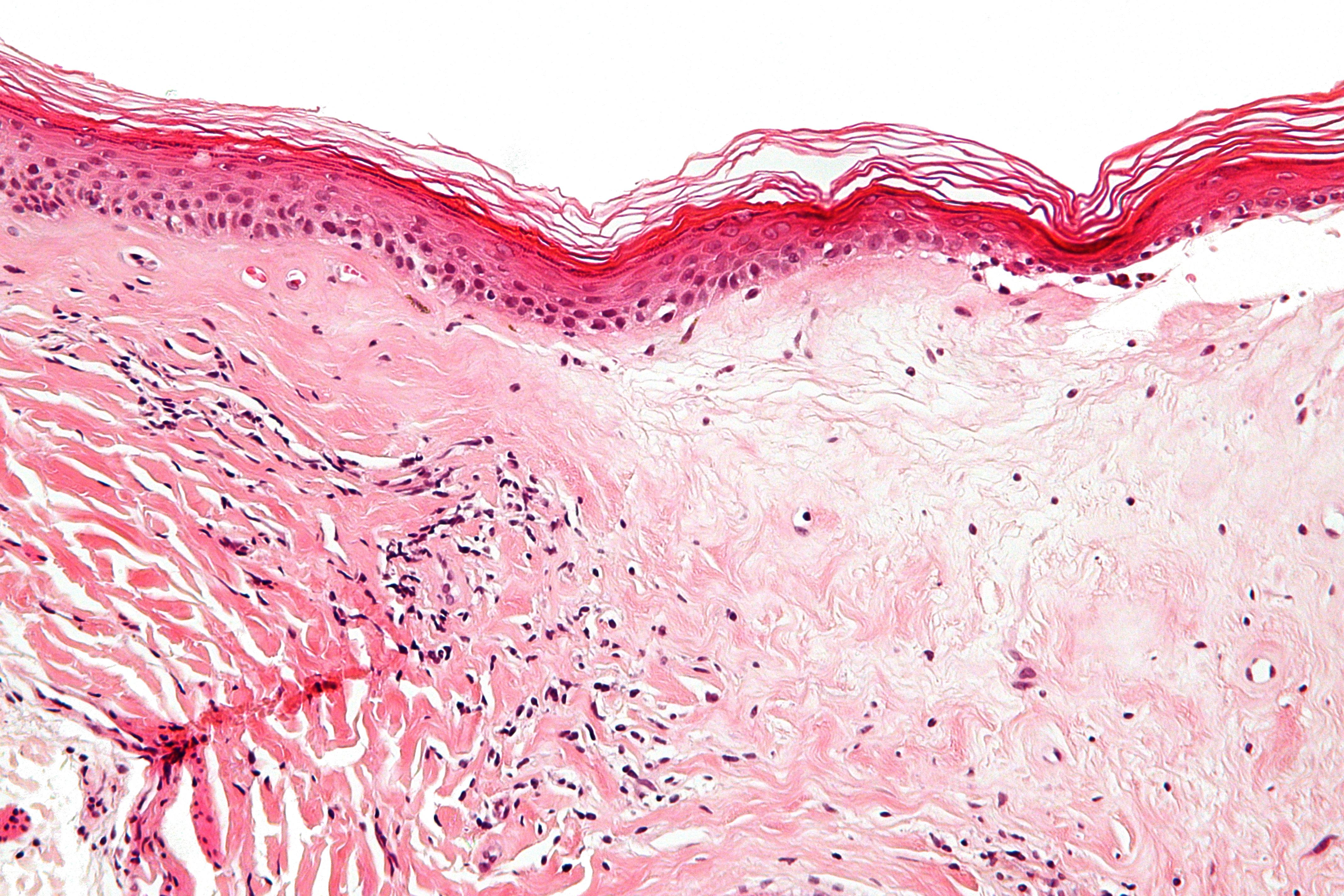 Confluent reticulated papillomatosis dermnet - Varicele reticular că
