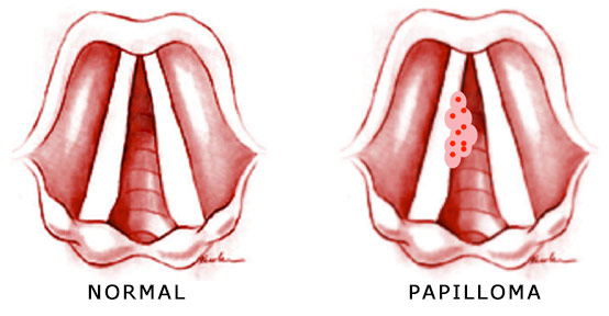 laryngeal papillomatosis steroids)