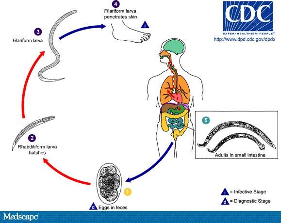 clisma pentru curatarea colonului sintomas oxiurus criancas