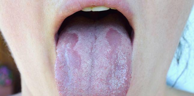 cancerul lingual simptome