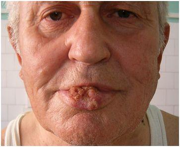 cancer malign la buza