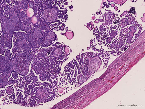 ovarian cancer histology