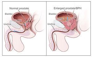 cancer de prostata o que)