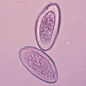 Enterobius vermicularis fisiologia - Enterobius vermicularis fisiologia. viermi la ficat