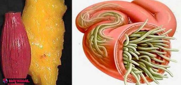 Aceşti paraziţi te mănâncă de viu şi produc cancer