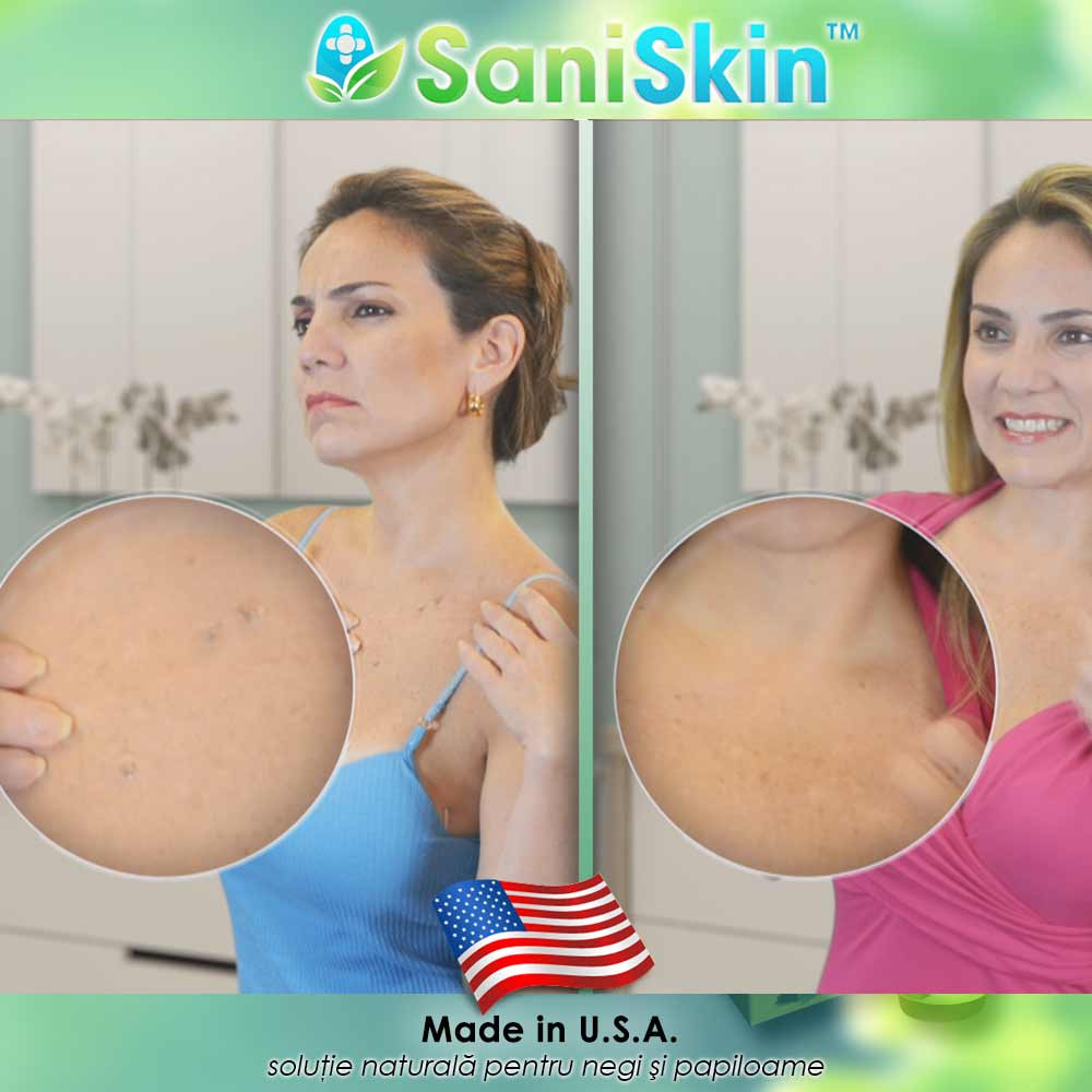 femeile însărcinate pot elimina papiloamele detoxifierea intestinului de colon