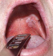papilom condilom leucoplazie)
