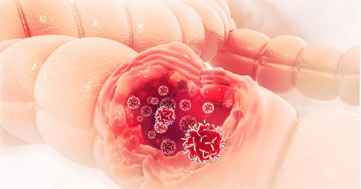 simptome la cancerul de colon)