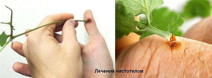 care sunt senzațiile cu o verucă plantară