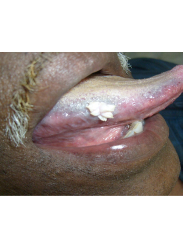 squamous papilloma on tongue treatment)