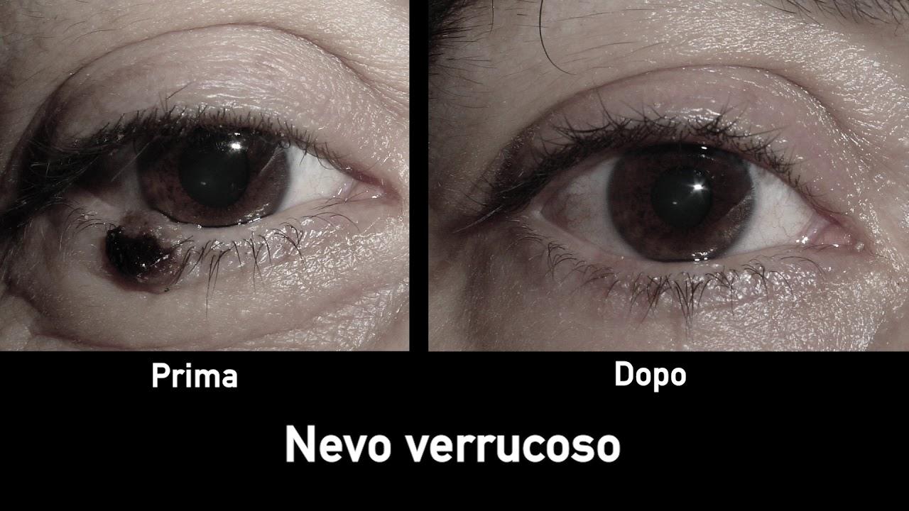 papilloma squamoso occhio)