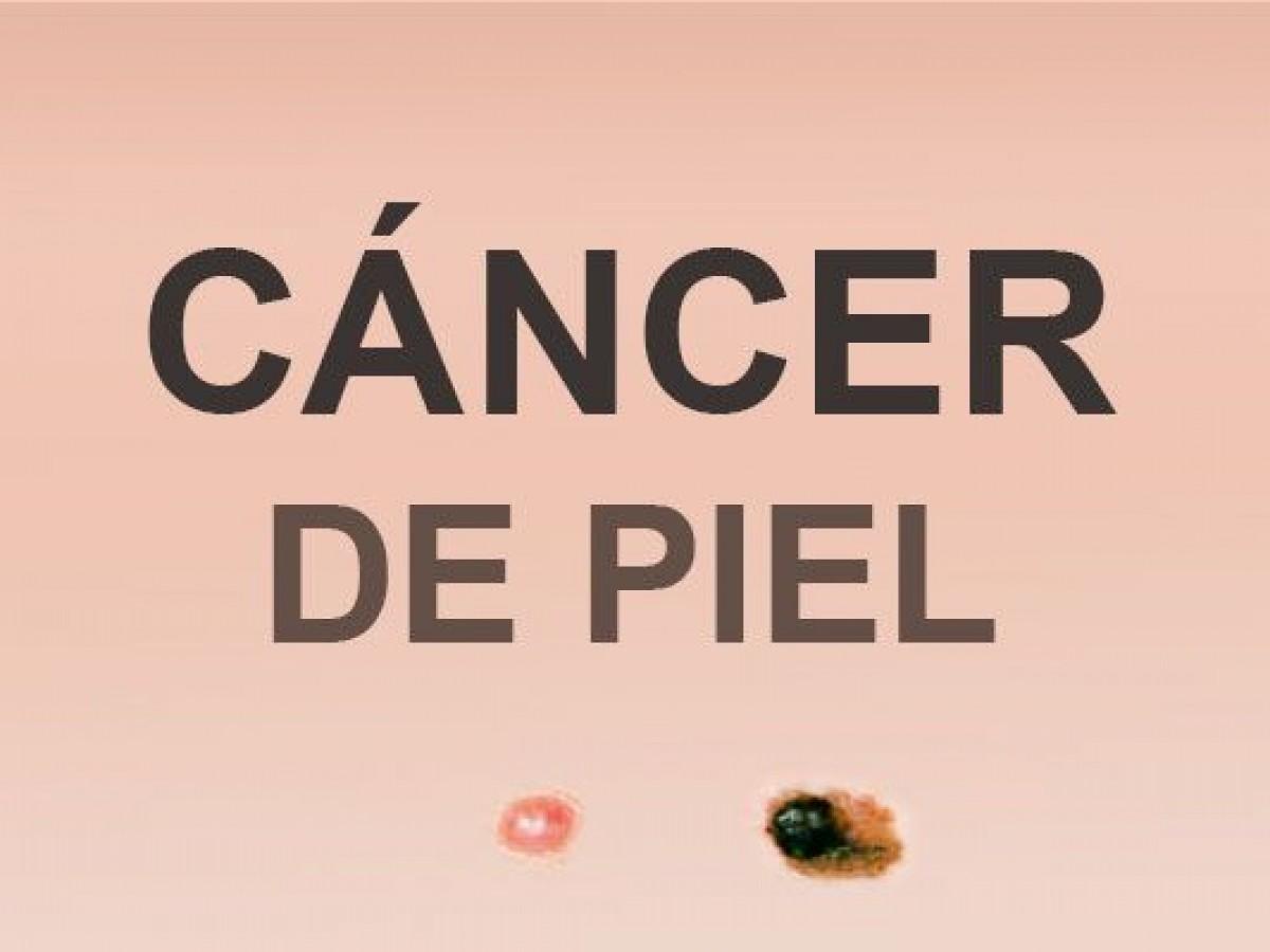 cancer epitelial de piel)