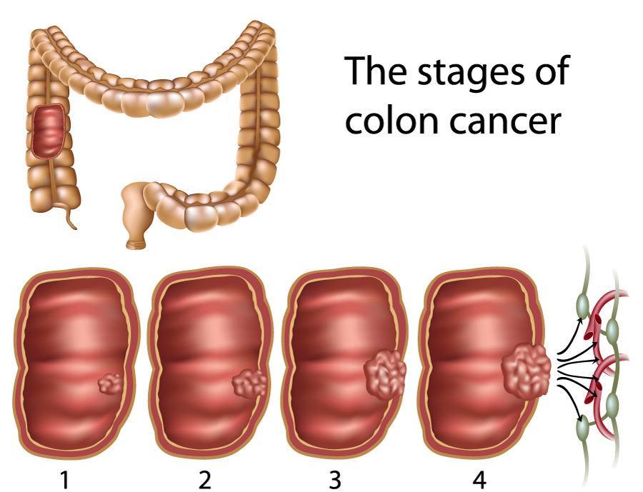 cauze cancer la colon)