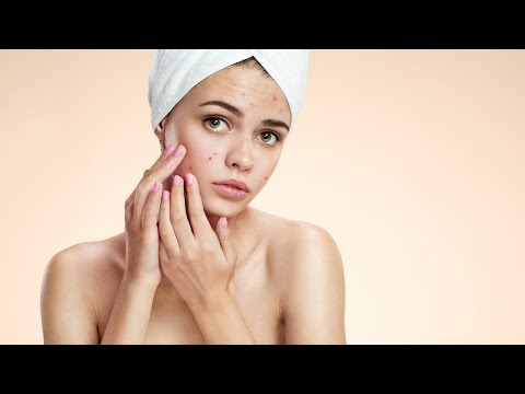 Poate acnee de la viermi? - Tratament June