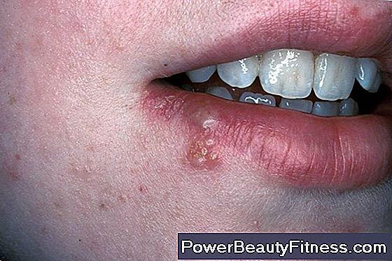 Papilloma virus bocca incubazione