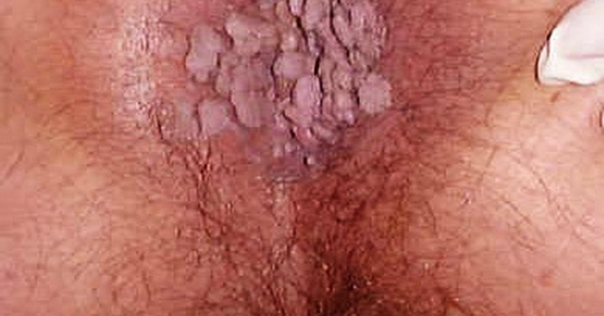 papilloma virus primi sintomi