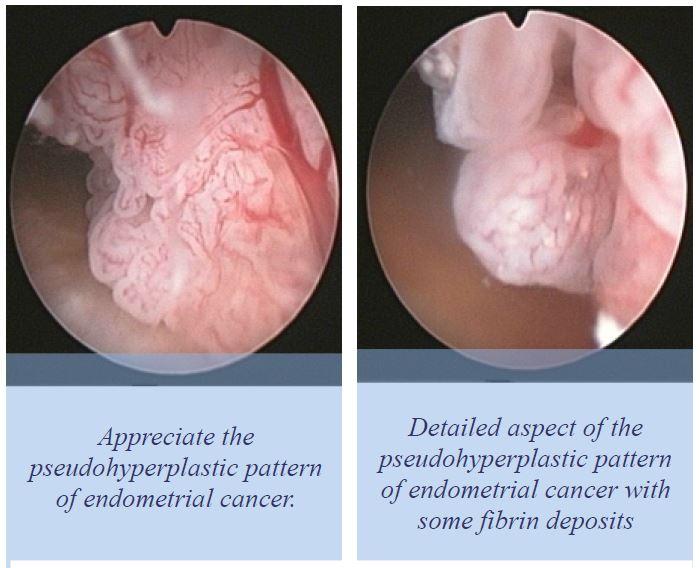 endometrial cancer hysteroscopy