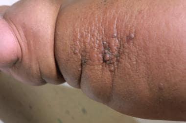 papillomas in lymphedema
