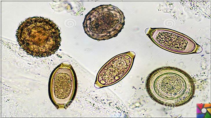 bag rsak parazit yumurtas)