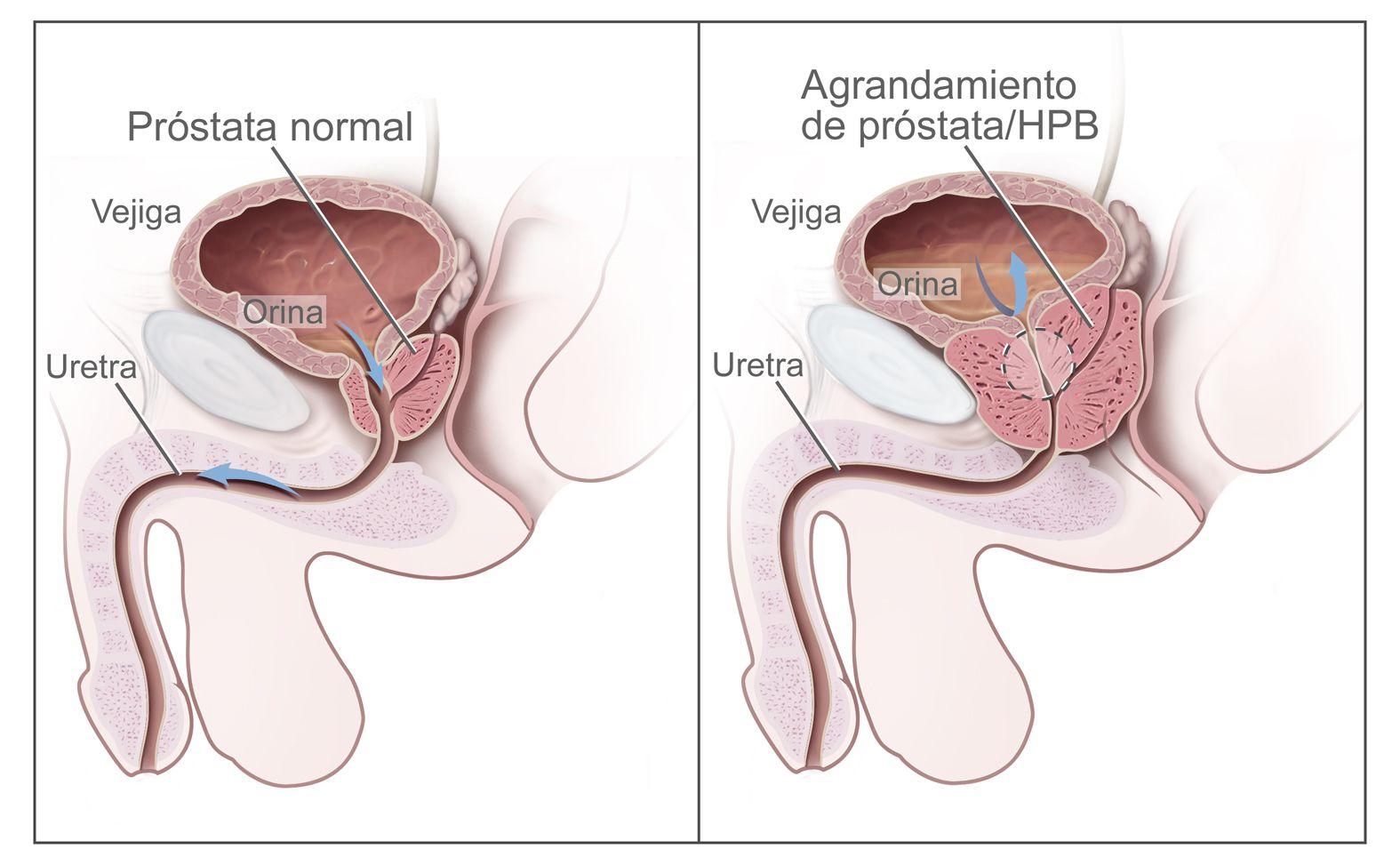 cancer de la prostata tratamiento