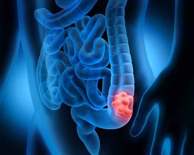 colon cancer benign or malignant cancerul vezicii urinare simptome