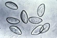 enterobius vermicularis u oxiuros