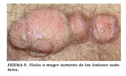 cancer uretra masculina)