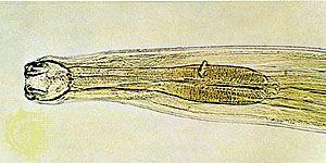 nemathelminthes hookworm