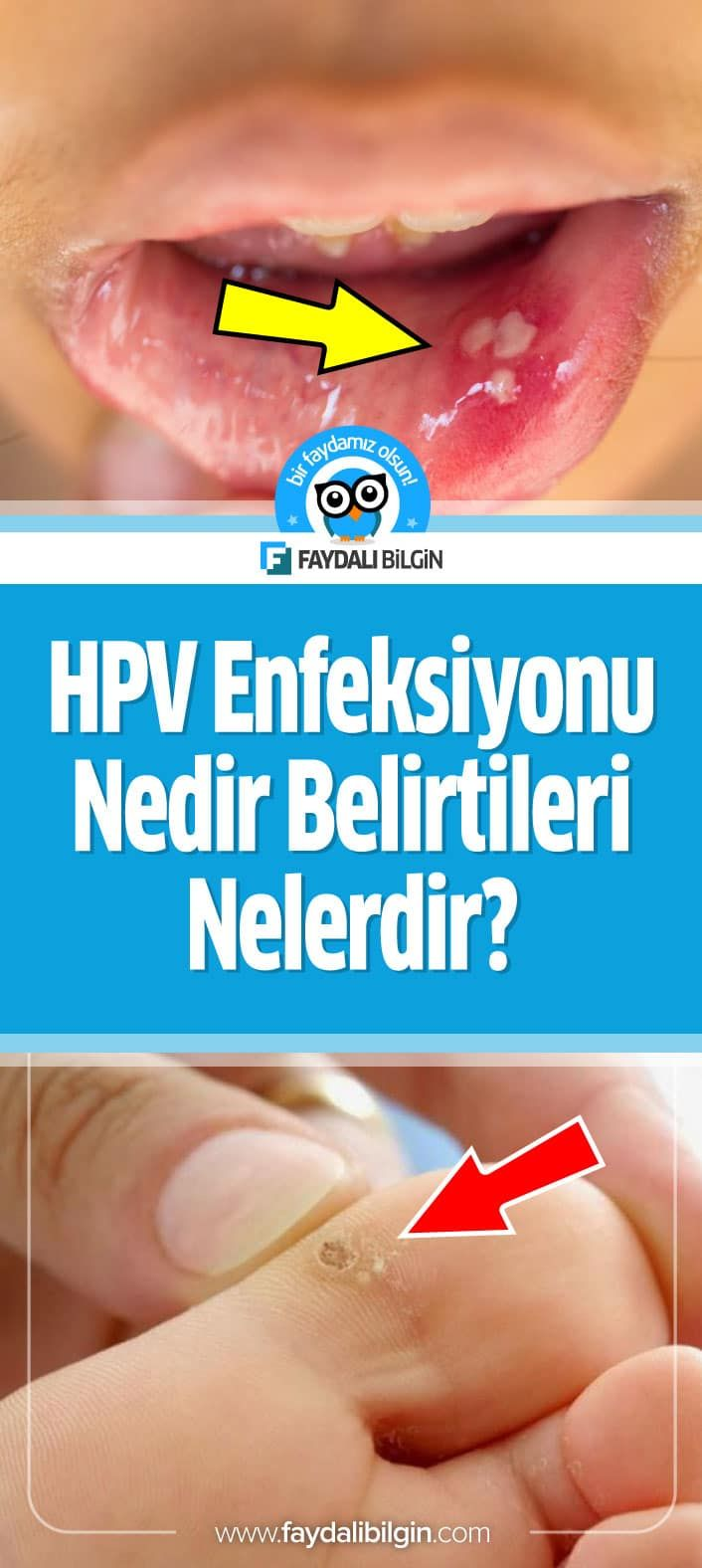 hpv genital sigil as s