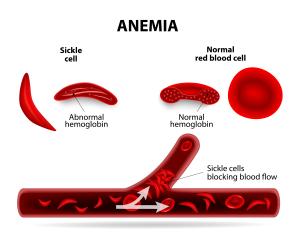 anemie tipuri