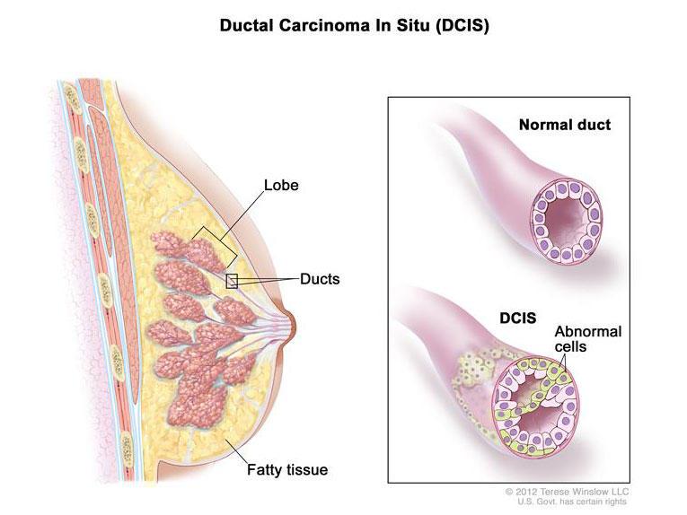 Ductal papilloma symptoms