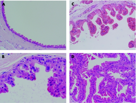 Sclerosing intraductal papilloma with apocrine metaplasia Intraductal papilloma apocrine metaplasia