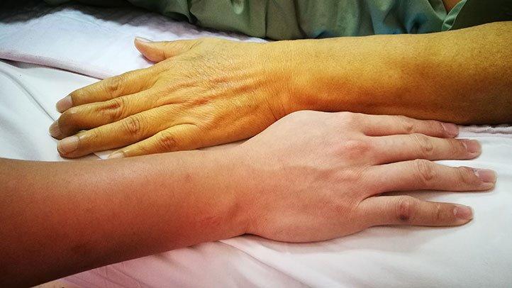 Endometrial cancer brachytherapy