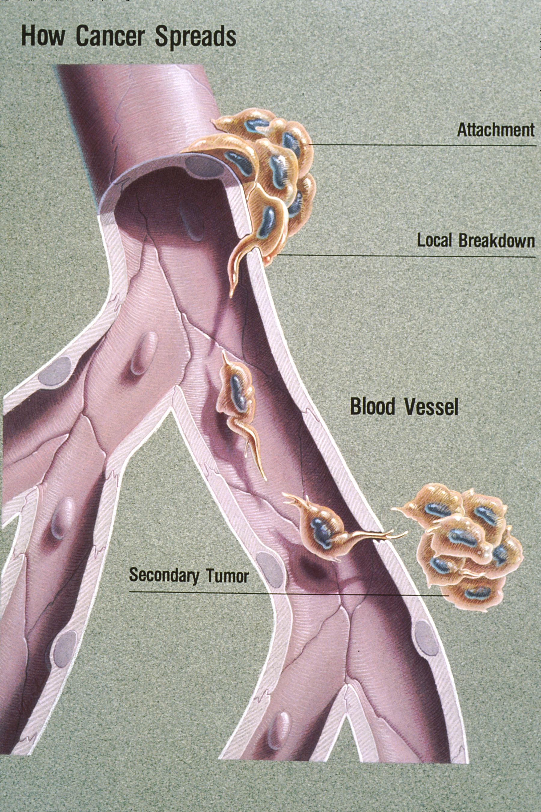 metastatic cancer and blood