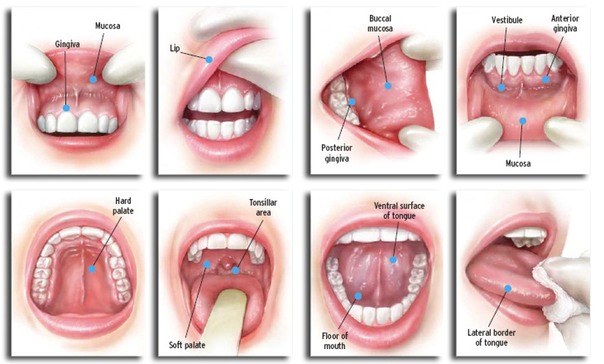 hpv on mouth treatment