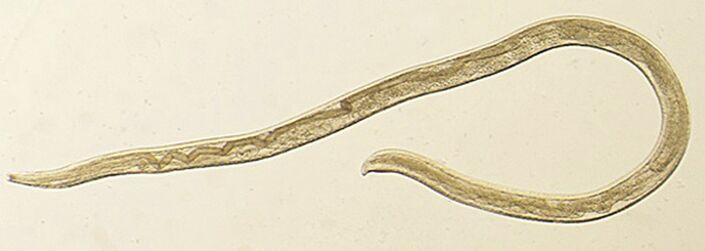 paraziti les platyhelminthes