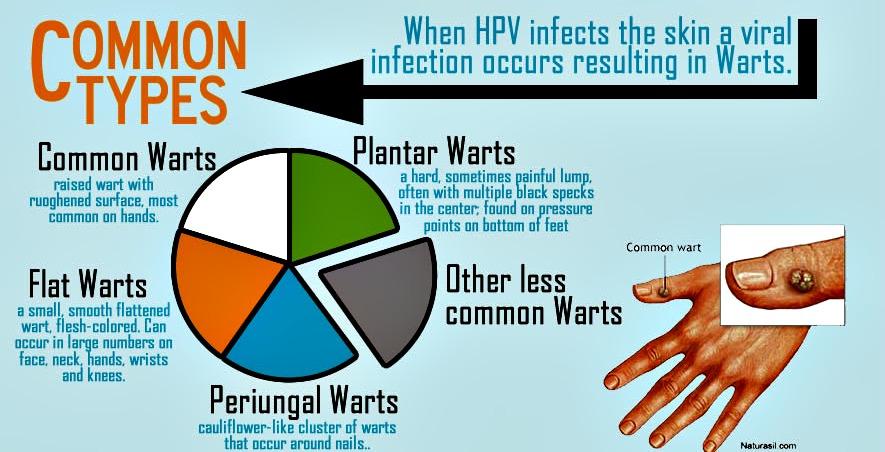 hpv strains genital warts