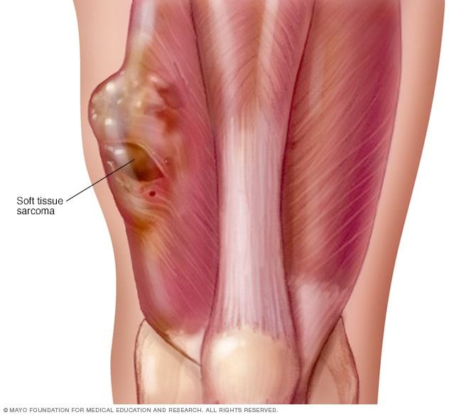 sarcoma cancer knee)