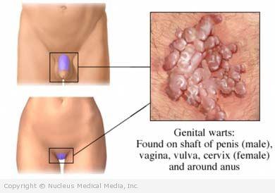 hpv genital warts female symptoms