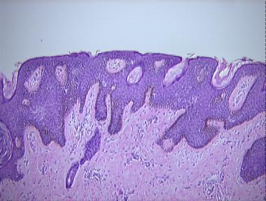 Reticulated papillomatosis pathology, Confluent and reticulated papillomatosis pathology