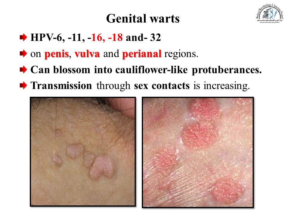 Papillomavirus types warts, Does hpv type 16 18 cause warts