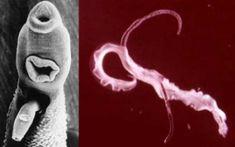 ciclul vieții bolii pinworms îndepărtați condiloamele de pe pleoape