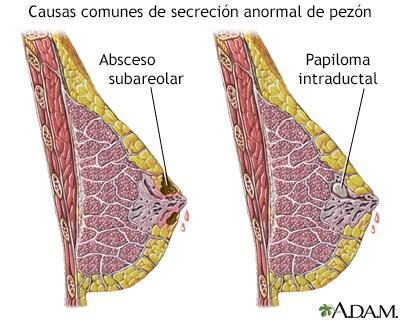 Papiloma ductal de seno - Papiloma intraductal en el seno